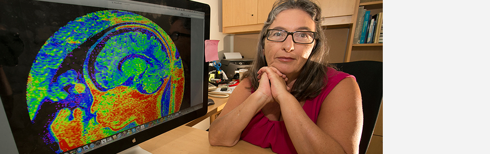 Stony Brook researcher publishes findings in <em>Journal of Nuclear Medicine</em>